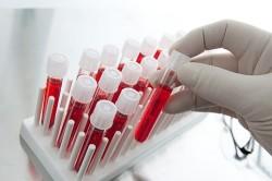 Анализ крови для диагностики запора у ребенка